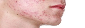 Hoe scheren met puistjes (acne)