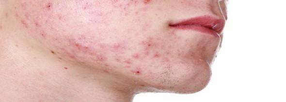 scheren-jeugdpuistjes-acne