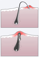 ingegroeid-haartje-twee-vormen-verwijderen