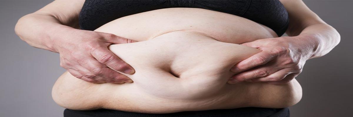 Scheren wanneer je overgewicht hebt?