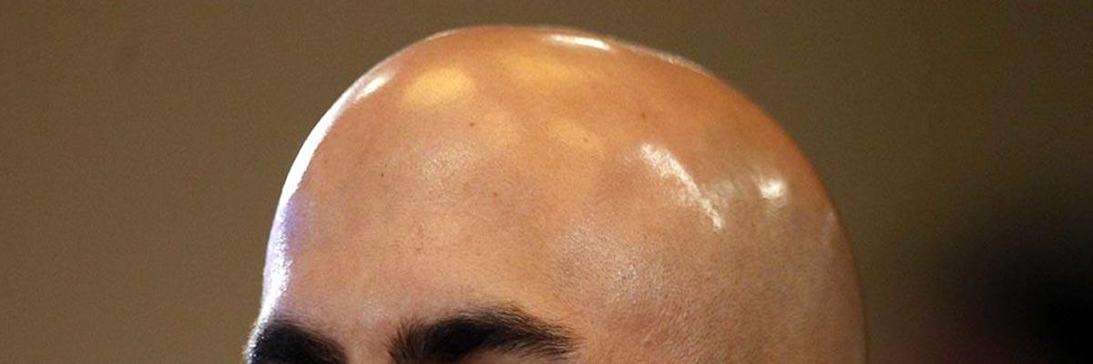 Gladgeschoren hoofd laten glimmen