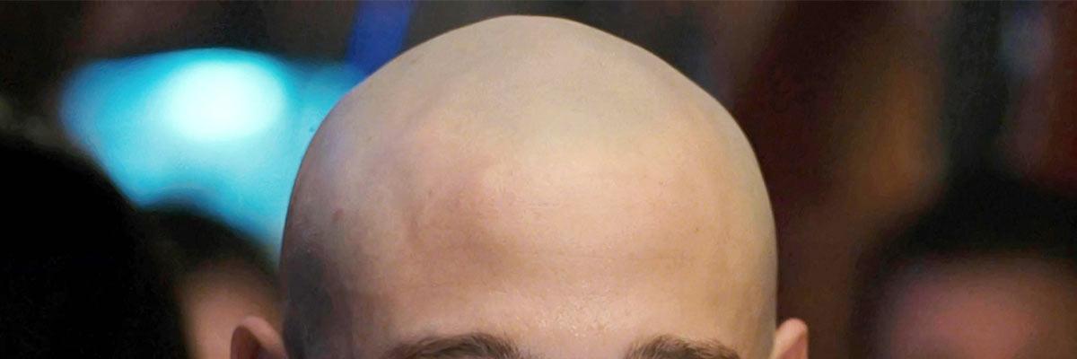 Glimmende hoofdhuid (kaal hoofd) voorkomen